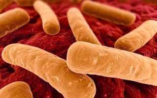 Способы борьбы с болезнетворными бактериями и защиты от них
